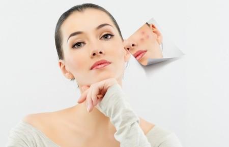 Простудный прыщ на лице: лечение и профилактика